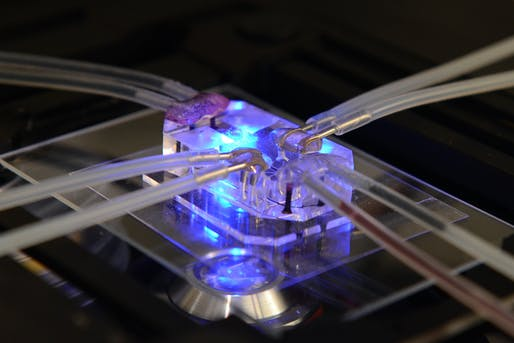 Design of the Year 2015 winner: Human Organs-on-Chips by Donald Ingber and Dan Dongeun Huh - Wyss Institute at Harvard University.