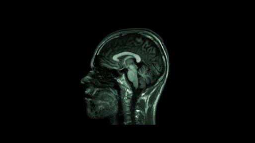 Bjarke's skull. Screenshot from the trailer for BIG TIME.